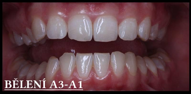 B+lení-zubu