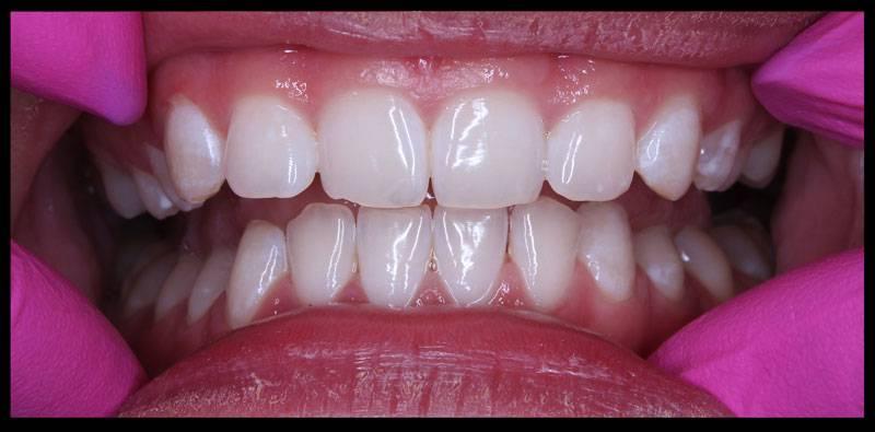 B+lení-zubupo