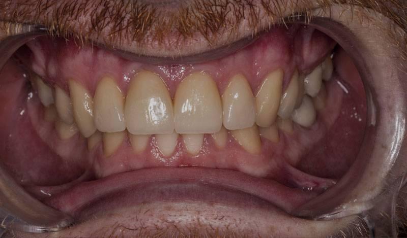 Estetická-stomatologiepo