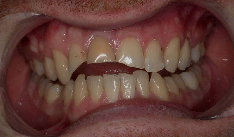 Estetická-stomatologiepred